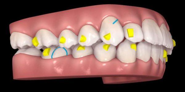 現役の歯科医師が教える、本当の歯科治療