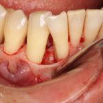 【重度の歯周病】 歯周病の実態とは何なのか