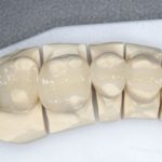 【銀歯のやり直し】銀の詰め物(銀歯)を白くしたい