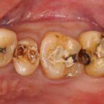 【銀歯の中は虫歯だらけ?】保険治療の実際とやり直しの実際(セラミック治療)